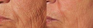 Pearl Skin Resurfacing