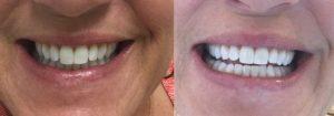 atlanta teeth whitening