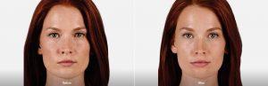 Juvederm Facial Filler Before After