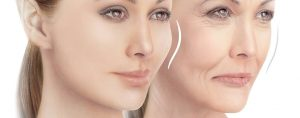 Voluma Facial Filler